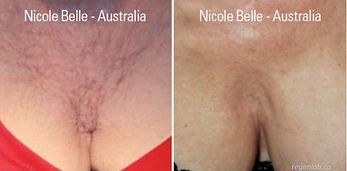 PRP Vampire Procedure Wrinkles Before ad After
