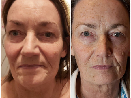 Lift and sculpt your face with Zone Face Lift and Facial Cupping
