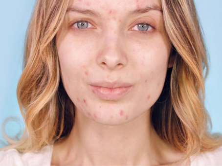 How to Get Rid of Cystic Acne