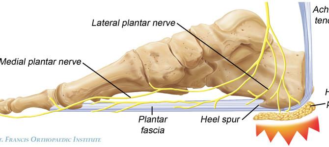 Heel & arch pain (Plantar Fasciitis)