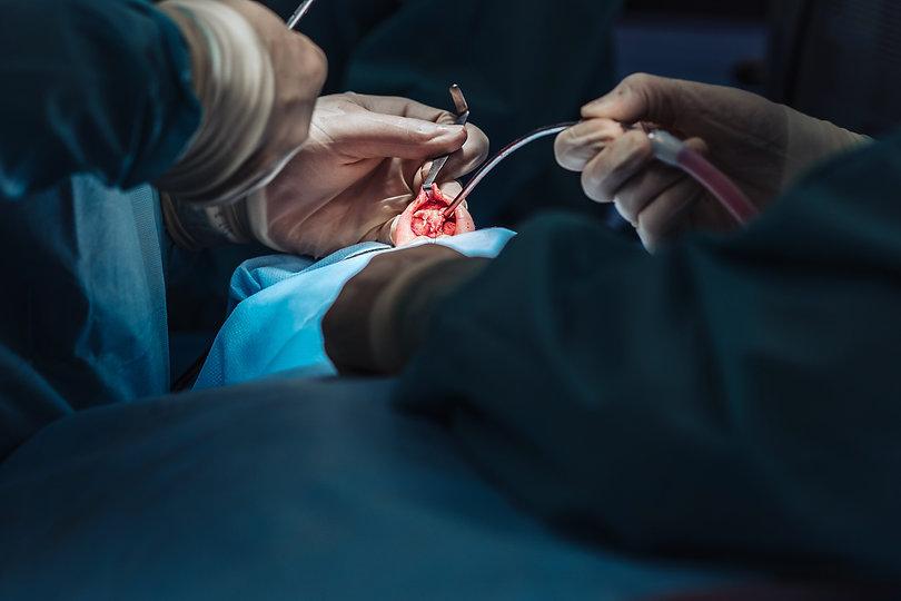 Surgery close shot