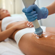 Acoustic Wave therapy, Romiley, Stockpor