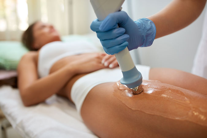 Acoustics wave therapy, cellulite, Romiley, Stockport, Archways