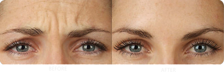 botox-brow-before-after-2-1024x331.png