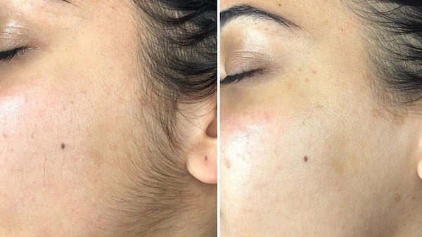 dermaplaning_before_and_after-1296x728-b