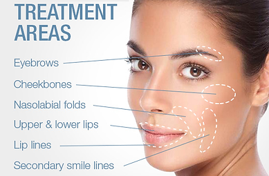 juvederm-treatment-areas.png