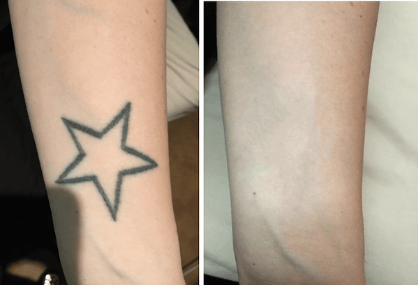 Tattoo-Removal-Before-After-Photo-36-yea