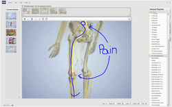 sciatica pain due to bulging disc