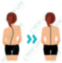 Terapi skoliosis3 watermarked2.jpg