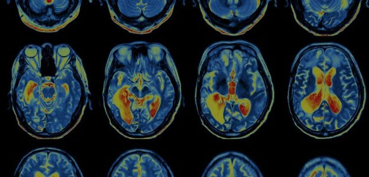 brain-scan-ADHD_edited.jpg