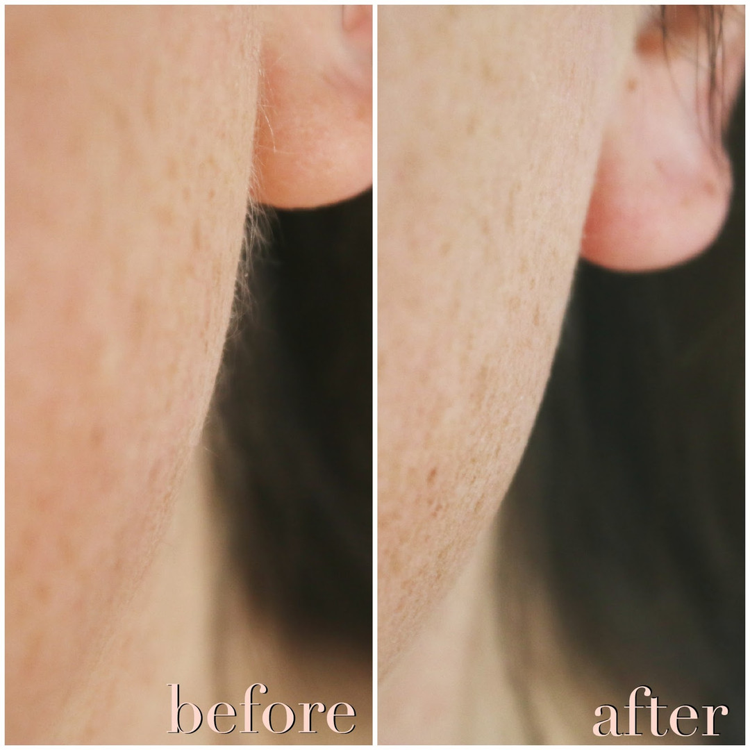 before after dermaplane.jpg