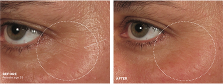 wrinkle smoother B&A.png