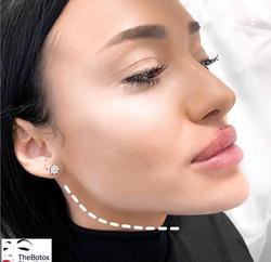 Razvan Vasilas The Botox Shop London 128