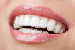 Invisalign | Invisible Braces | Clear Braces