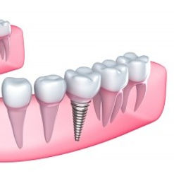 Dental Implants Elk Grove