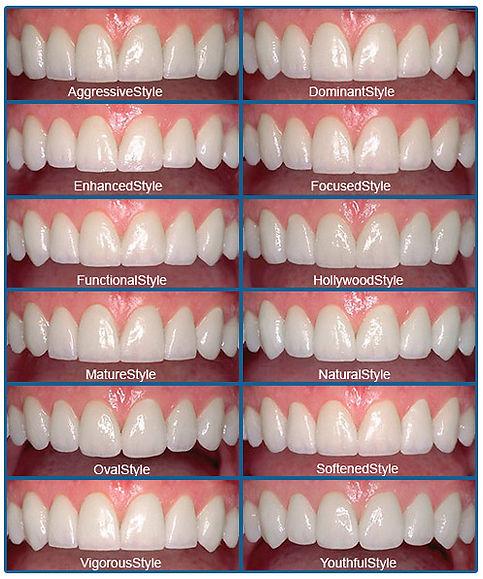 Smile Design | LVI Smile Catalog | Cosmetic Dentistry Styles