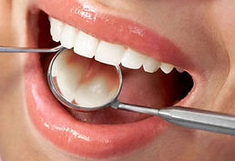 White Fillings | Tooth Colored Fillings