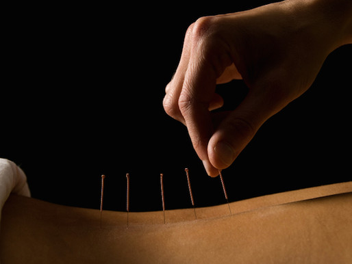 How Acupuncture May Relieve Your Chronic Back Pain