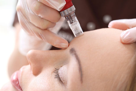 Needle%2520mesotherapy%252CMicroneedle%2520mesotherapy%252C%2520treatment%2520woman%2520at%2520the%2