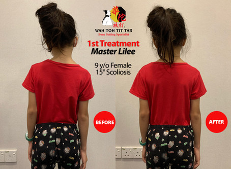 15° Scoliosis : 1st Treatment Results by Master Lilee