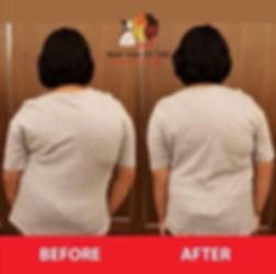Scoliosis Treatment .jpg