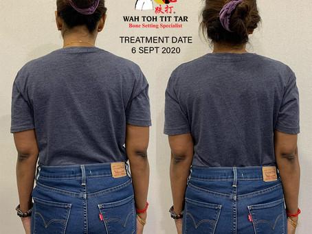 1st Treatment Results : WAH TOH TIT TAR (6/9 - 13/9/2020)