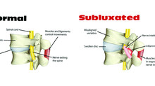 THOUGHTS, TRAUMA AND TOXINS: THREE CAUSES OF SUBLUXATION