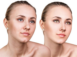 Before & after permanent eyeliner