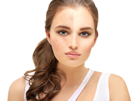 Acne Fighting Tips for Teens and Adults