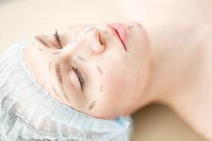 before-plastic-surgery-BSLAFU7.JPG
