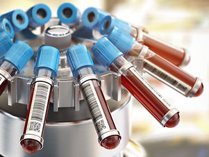blood-test-tubes-in-centrifuge-medical-l