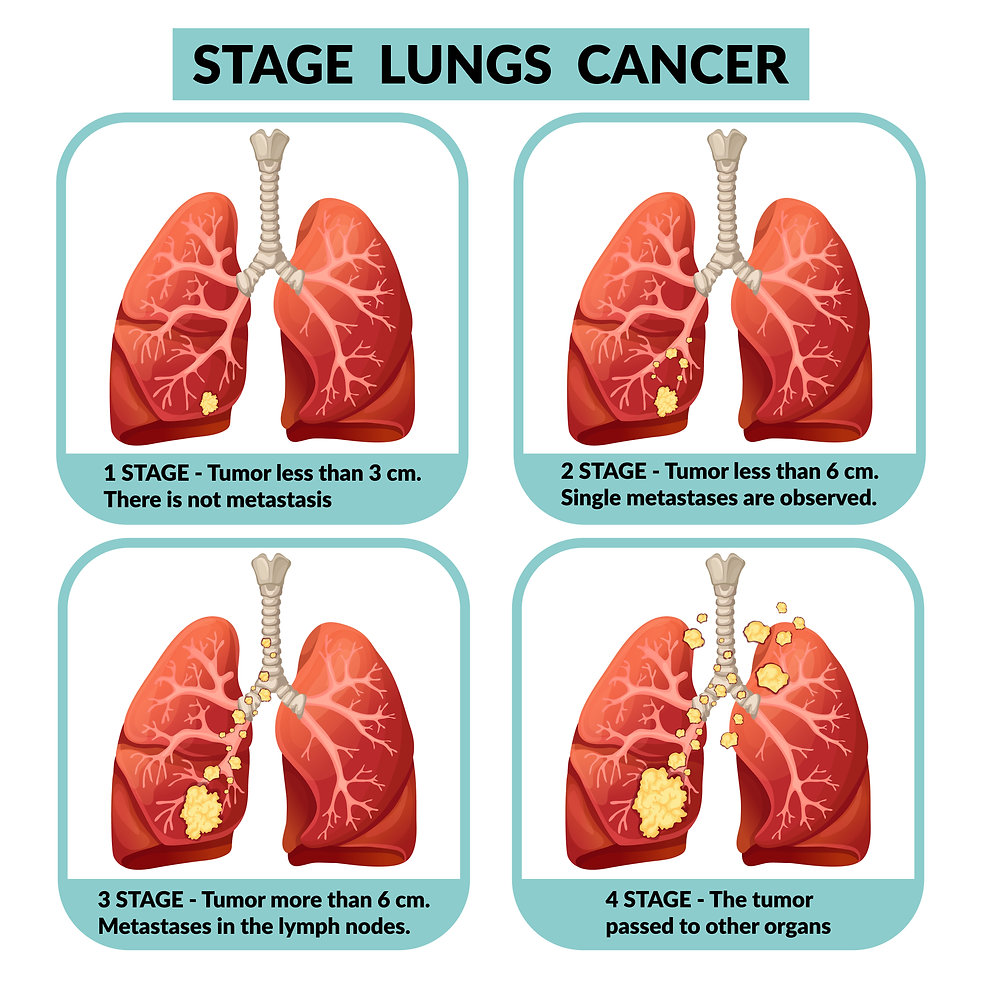 LUNG CANCER STAGES.jpg