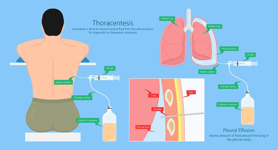 THORACENTESIS.jpg