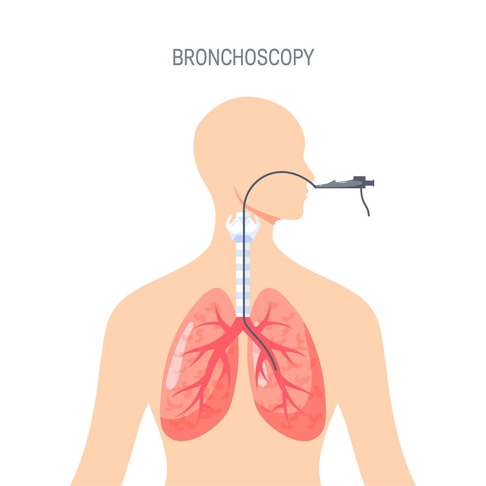 BRONCHOSCOPY.jpg