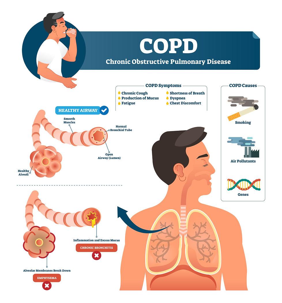 COPD 2.jpg