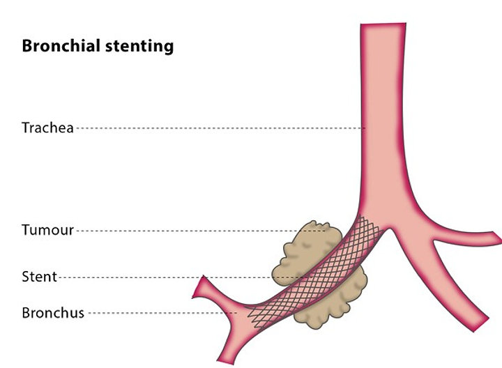 ENDOBRONCHIAL STENT.jpg