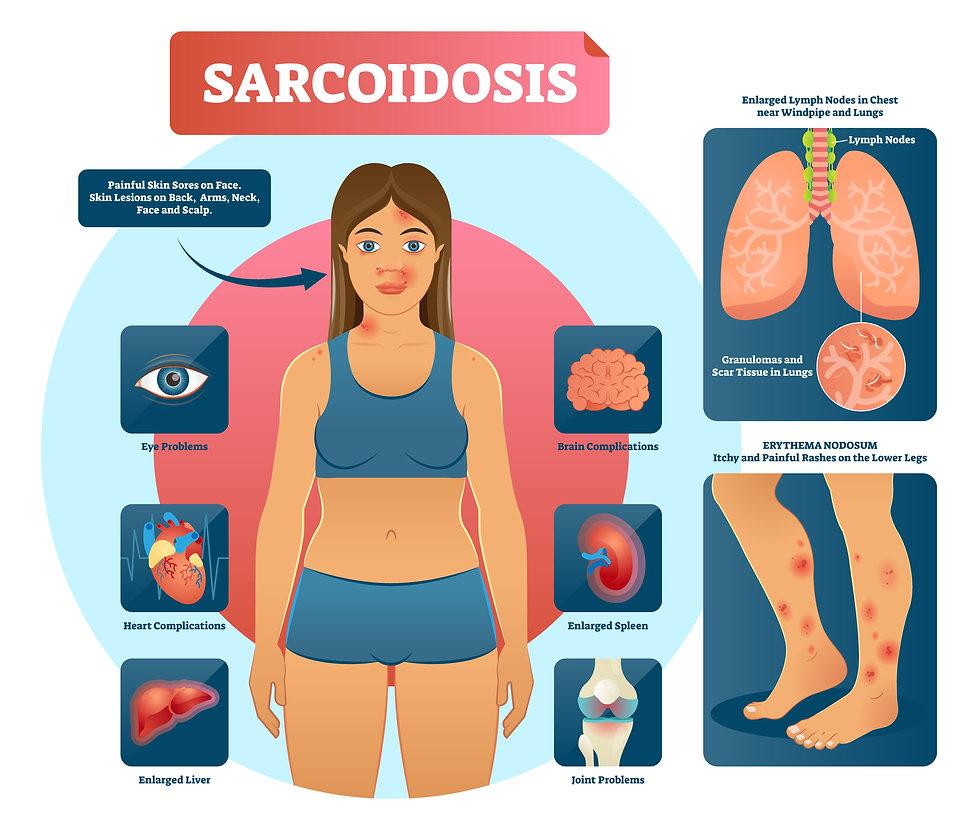 SARCOIDOSIS 2.jpg