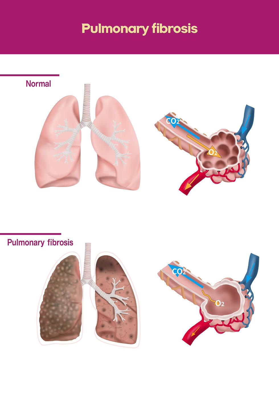 PULMONARY FIBROSIS.jpg