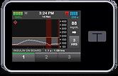 insulin_pump_tslimx2_wbasal-iq_technology.png