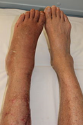 CPRS ברגליים