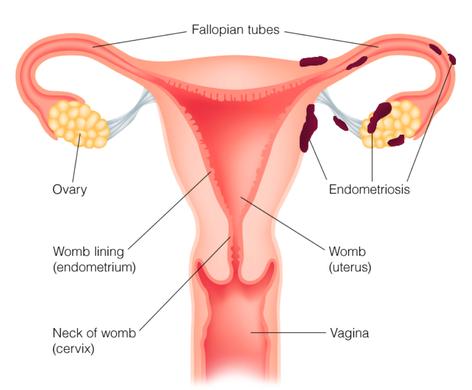 The Rise of Endometriosis