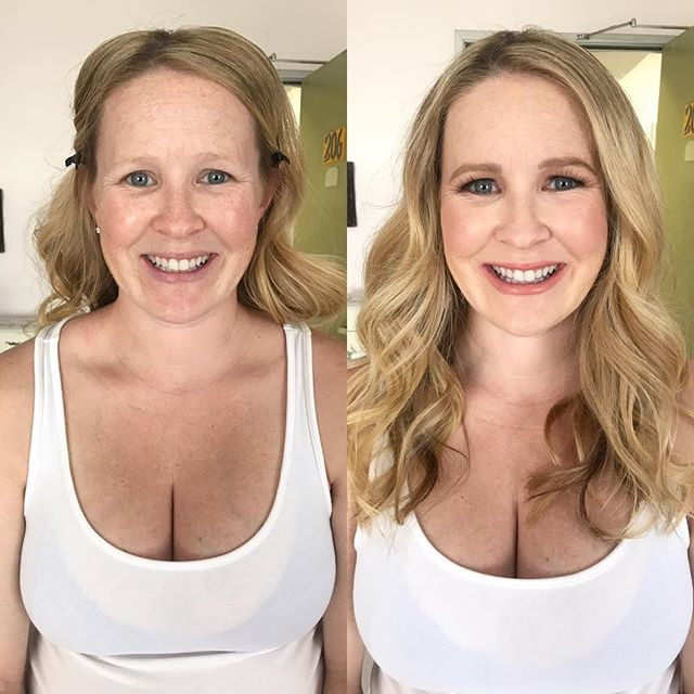Mommy makeovers are still one of my favo