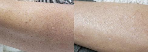 Spot Treatment.jpg