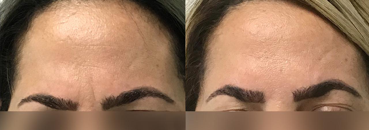 Anti-Wrinkle