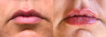 before and after Lips 1_1.jpg