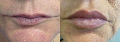 before and after Lips3.jpg