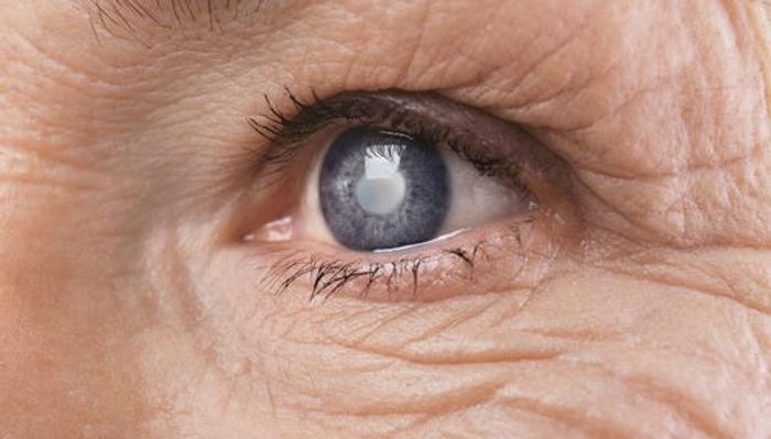 ojo-cataratas.jpg