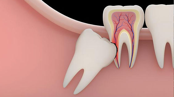 diş minası