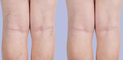 Vein Treatment Before & After