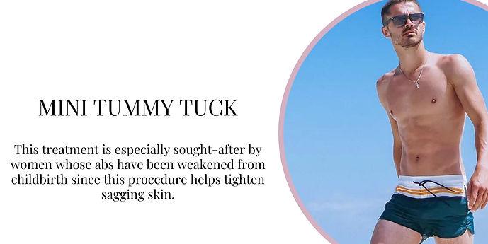 Mini Tummy Tuck.